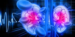 Hemodialysis Reverse Osmosis